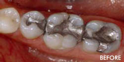 Non Metal Fillings 1
