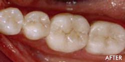 Non Metal Fillings 2